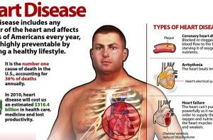 Heart Disease can be prevented using Omega-3 strategies