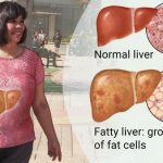 fat loss, weight loss